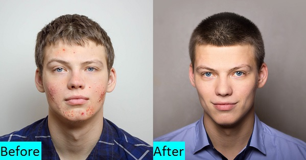 Pimples Treatment in Pune