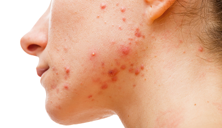 Best Acne Treatment in Pune