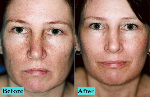 best-CO2-Laser-peels-treatment-doctor-in-pune-india