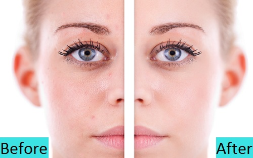 best dry skin treatment clinic in koregaon park pune