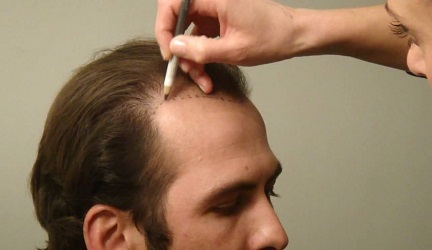 best-fue-hair-transplant-in-pune-india