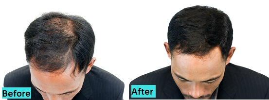 best-hairfall-cure-results-in-pune
