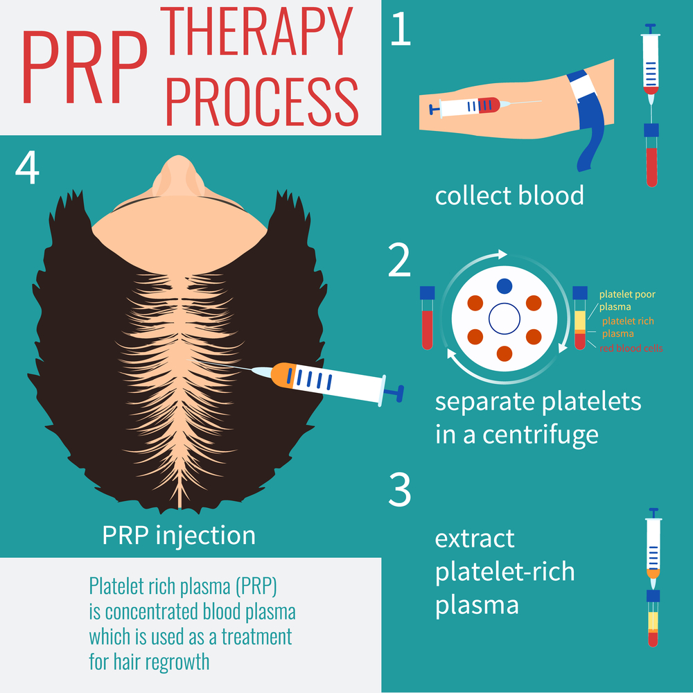 best-prp-therepy-in-pune