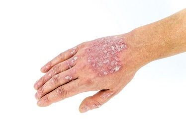 Psoriasis-skin-Treatment-in-pune