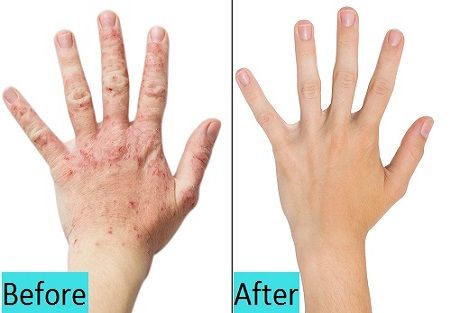 best psoriasis treatment in pune