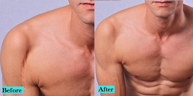 best-scar-treatment-in-pune-india