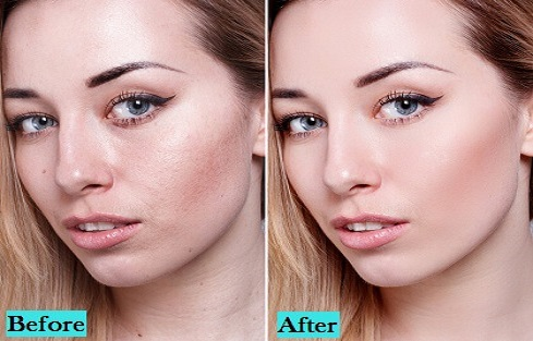 best-Skin-Lightening-treatment-in-pune-india