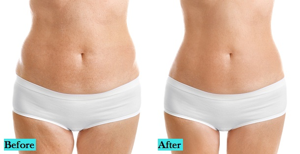 best-stretch-marks-treatment-in-pune
