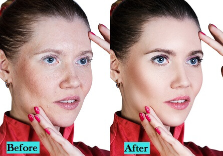 best-anti-ageing-treatment-in-pune