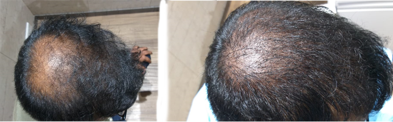 best-scalp-micropigmentation-treatment-in-pune