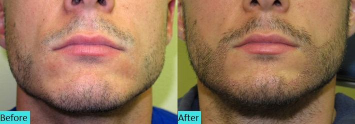 best-fue-hair-transplant-results-at-skin-world-pune-india