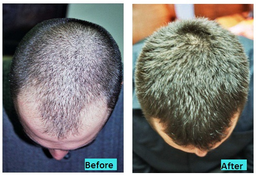 best-laser-hairgrow-therapy-in-pune-india