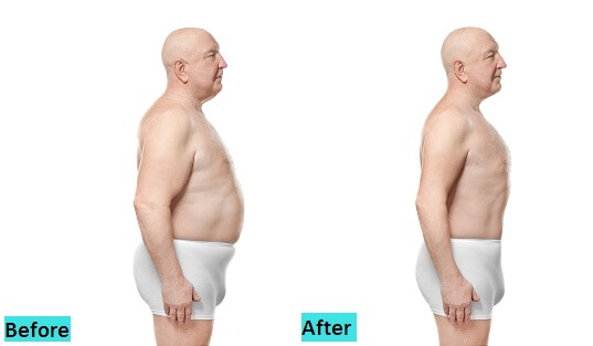 best-liposuction-treatment-in-pune