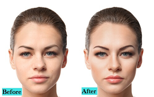 best-skin-toning-treatment-in-pune-india