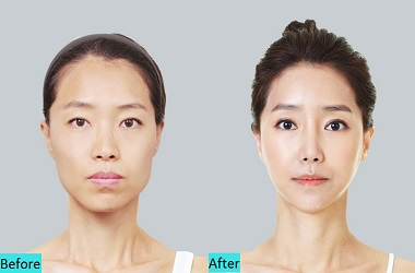 best-V-Shape-Face-lift-Treatment-in-pune